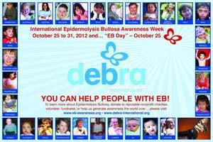 49.13 EB awareness week 2013 EB Awareness Week 2013 will take place from the 25th of October to the