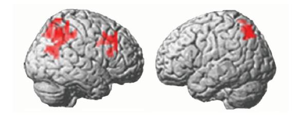 MRI activational changes: Increase in brain activity after