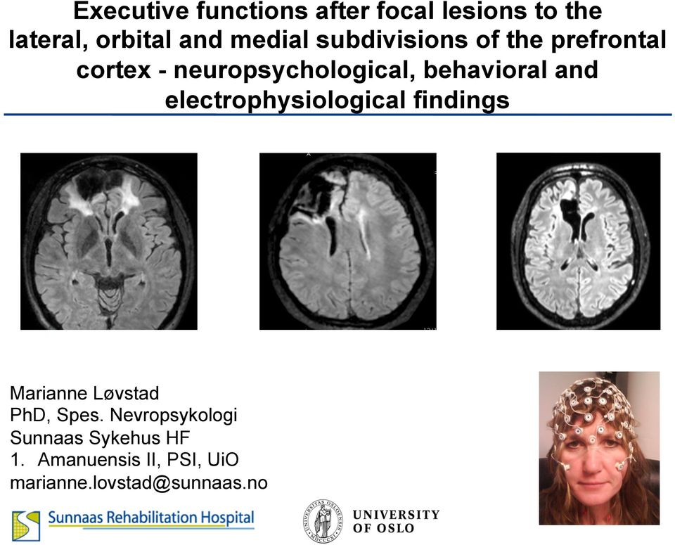 behavioral and electrophysiological findings Marianne Løvstad PhD, Spes.