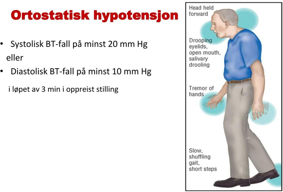 Diastolisk BT-fall på minst 10 mm