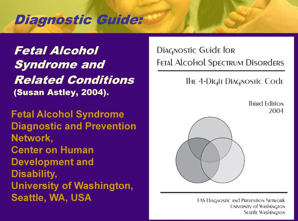 Fetal Alcohol Syndrome Diagnostic and Prevention Network,