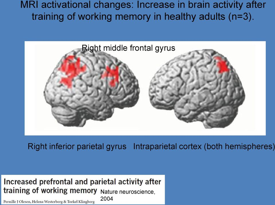 Right middle frontal gyrus Right inferior parietal gyrus