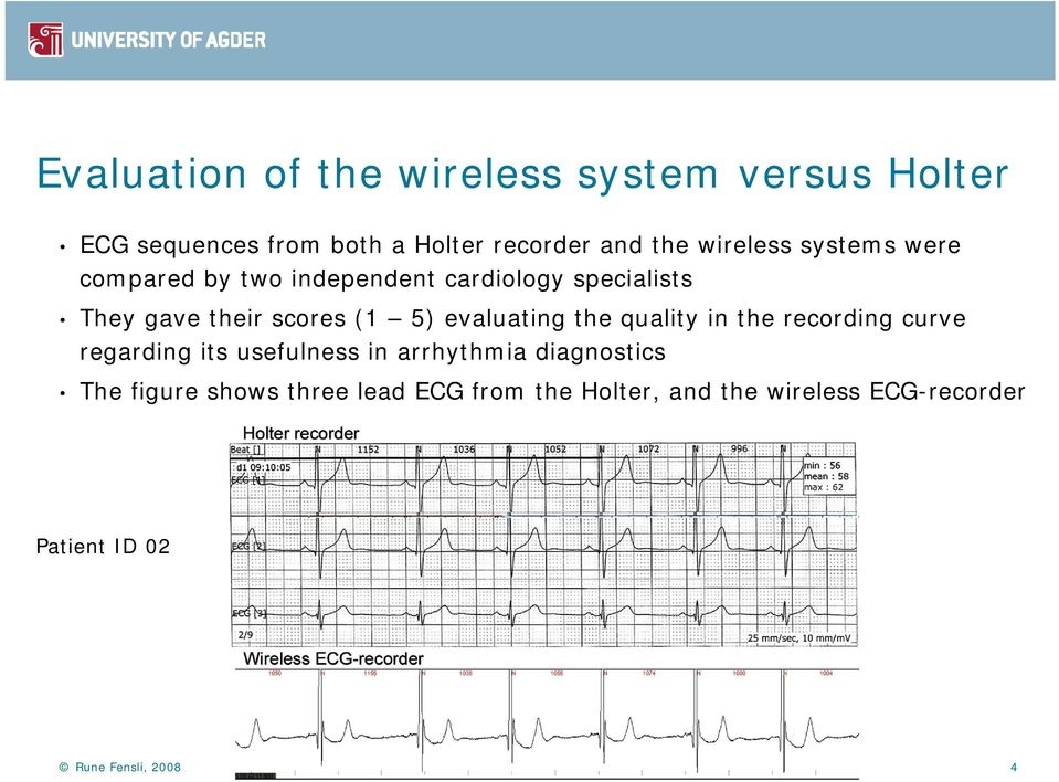 evaluating the quality in the recording curve regarding its usefulness in arrhythmia diagnostics The