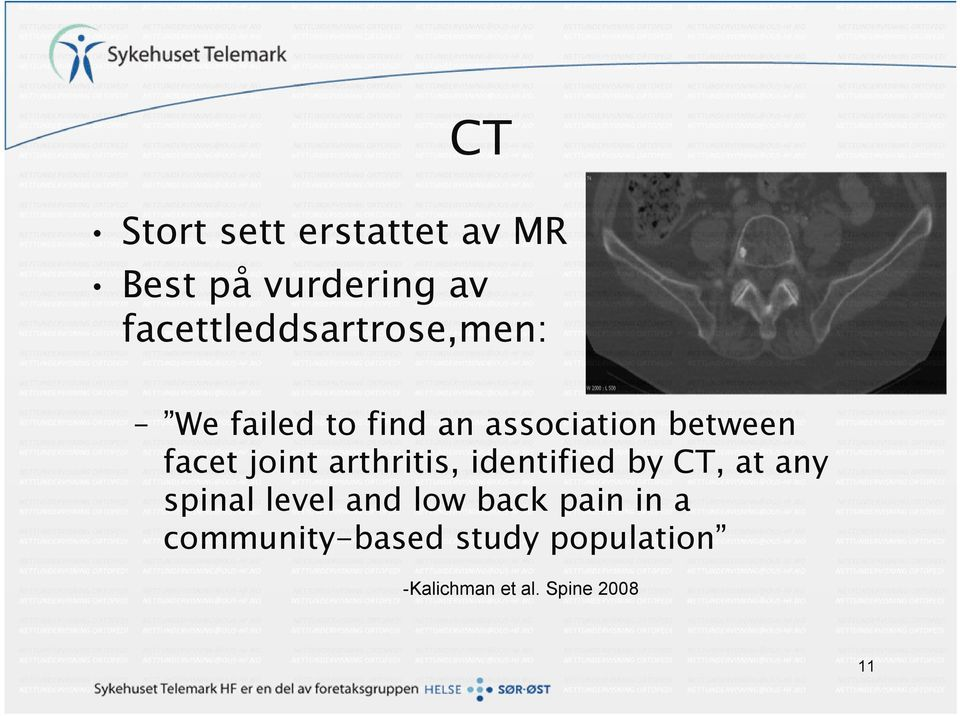 facet joint arthritis, identified by CT, at any spinal level and