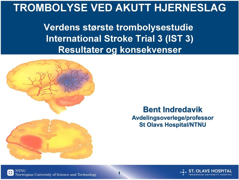 International Stroke Trial 3