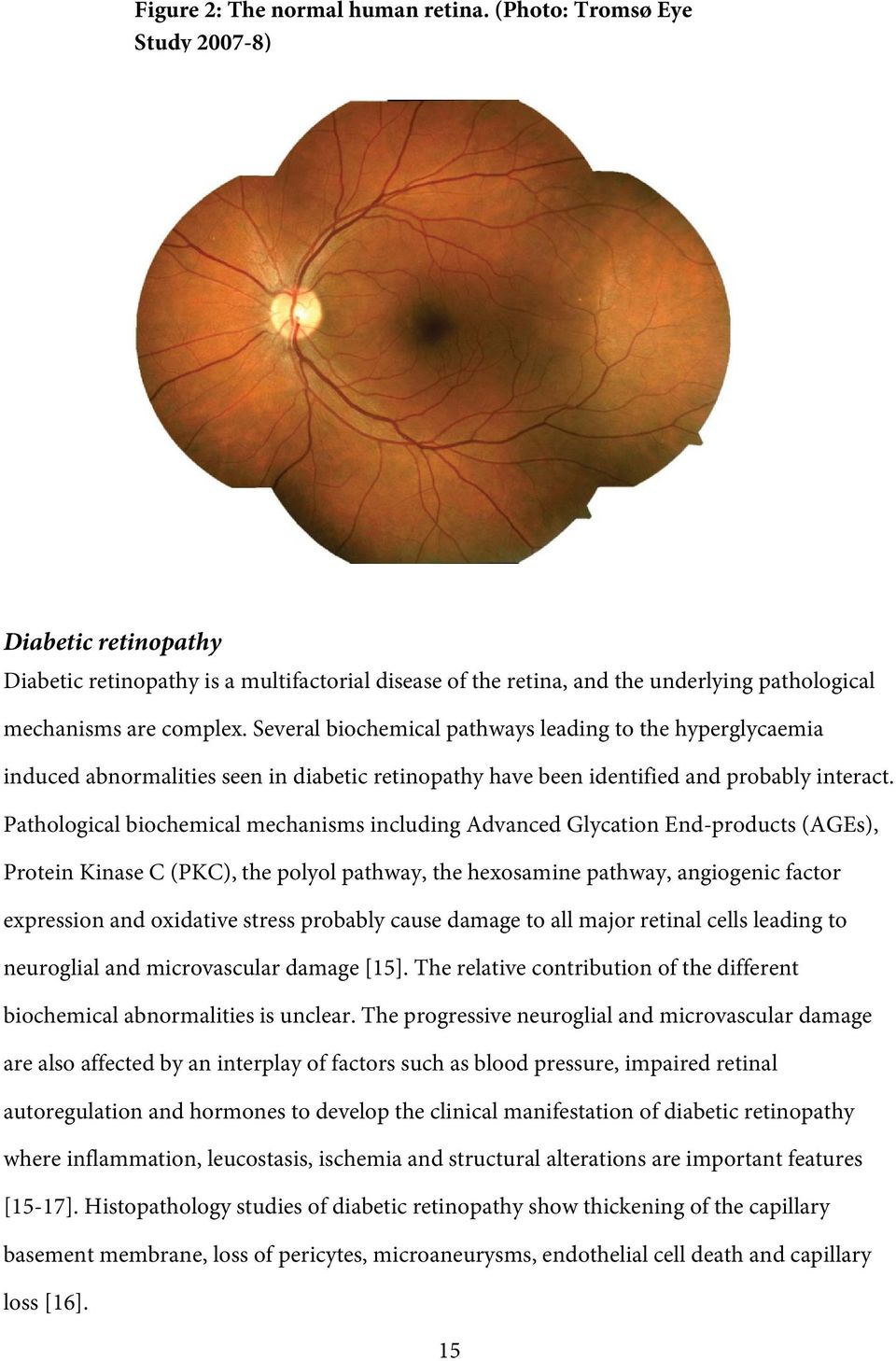 Several biohemial pathways leading to the hyperglyaemia indued abnormalities seen in diabeti retinopathy have been identified and probably interat.