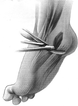 charcot marie tooth behandling