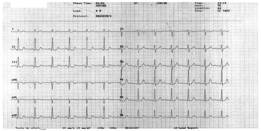 ISCHEMIA MIOCARDICA : «Almost any ecg abnormality may occur in ischaemic heart disease. Even in the presence of severe ischaemic heart disease, there may be no ecg abnormality.